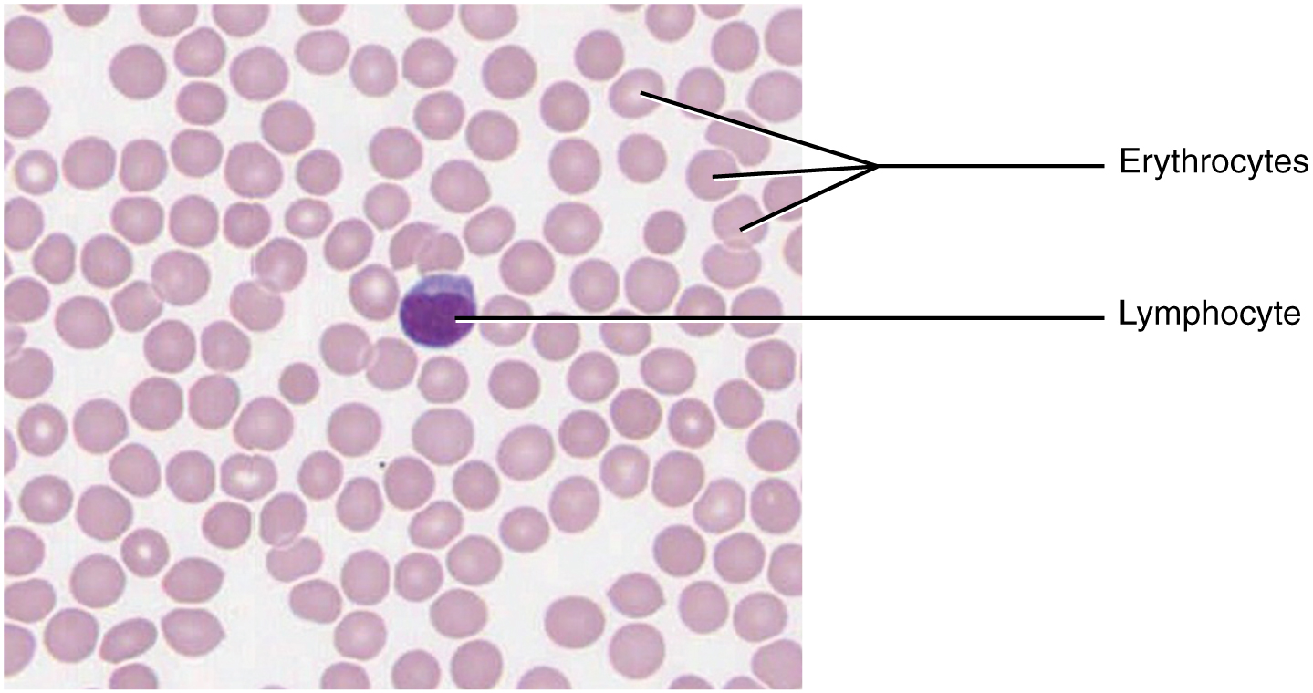 This micrograph of a blood smear shows a group of red blood cells and a single white blood cell. The red cells are small discs which have a slight depression at their centers with no nuclei present. The white blood cell is larger and more darkly stained and has a large, prominent nucleus that is also darkly stained.