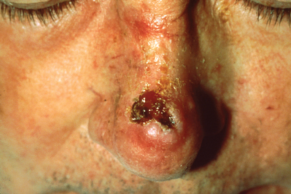 This photo shows a man's nose. The squamous cell carcinoma is located just above the tip of the nose and appears as a deep red, irregularly-shaped sore that spans almost the entire bridge of his nose.