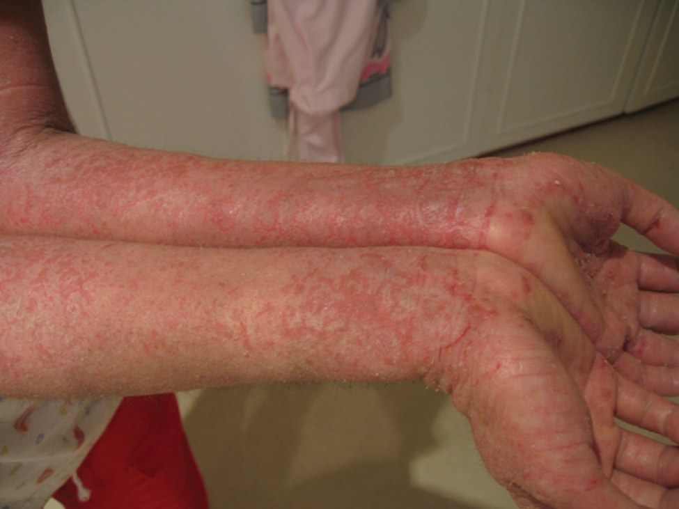 This photo shows a person with eczema on the ventral skin of the forearms. The person is a Caucasian, but his or her white skin is mottled with many red marks, giving it the appearance of a rash. In some areas, the skin is breaking and peeling.