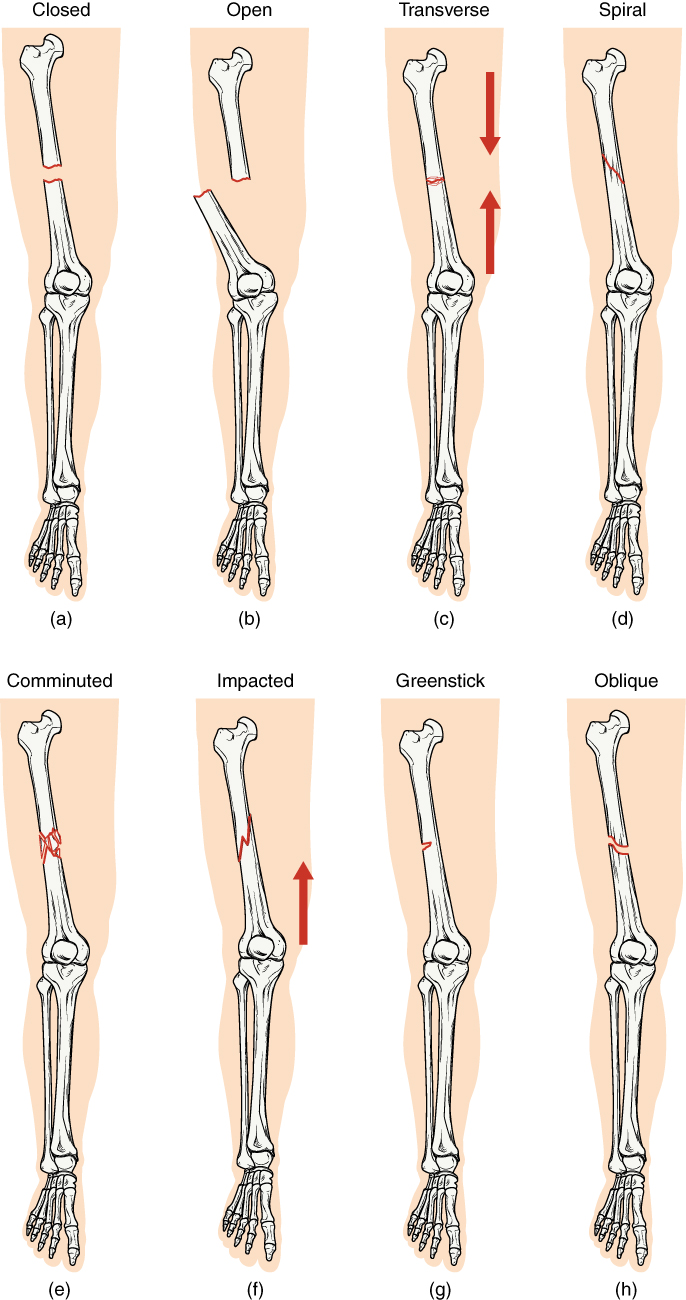 In this illustration, each type of fracture is shown on the right femur from an anterior view. In the closed fracture, the femur is broken in the middle of the shaft with the upper and lower halves of the bone completely separated. However, the two halves of the bones are still aligned in that the broken edges are still facing each other. In an open fracture, the femur is broken in the middle of the shaft with the upper and lower halves of the bone completely separated. Unlike the closed fracture, in the open fracture, the two bone halves are misaligned. The lower half is turned laterally and it has protruded through the skin of the thigh. The broken ends no longer line up with each other. In a transverse fracture, the bone has a crack entirely through its width, however, the broken ends are not separated. The crack is perpendicular to the long axis of the bone. Arrows indicate that this is usually caused by compression of the bone in a superior-inferior direction. A spiral fracture travels diagonally through the diameter of the bone. In a comminuted fracture, the bone has several connecting cracks at its middle. It is possible that the bone could splinter into several small pieces at the site of the comminuted fracture. In an impacted fracture, the crack zig zags throughout the width of the bone like a lightning bolt. An arrow indicates that these are usually caused by an impact that pushes the femur up into the body. A greenstick fracture is a small crack that does not extend through the entire width of the bone. The oblique fracture shown here is travelling diagonally through the shaft of the femur at about a thirty degree angle.