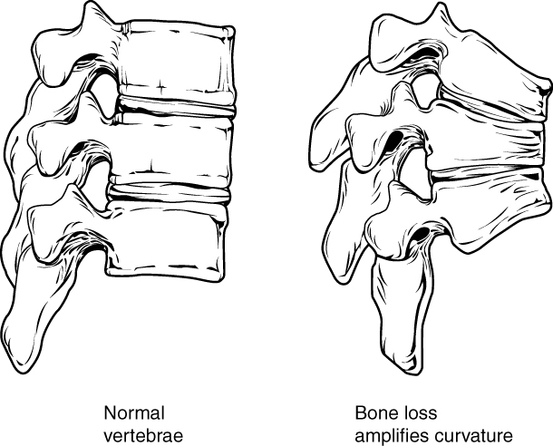 This figure shows the changes to the spine in osteoporosis. The left panel shows the structure of normal vertebrae and the right panel shows the curved vertebrae in osteoporosis.