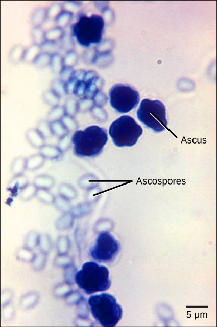 Micrograph shows asci, which appear as multiple, sphere-like shapes fused together into a structure about 7 microns across, and ascospores, which are small, light blue ovals about two microns wide by three microns long released from the asci.