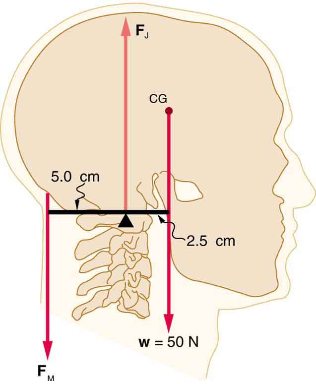 An erect head is shown. The weight of the head is fifty newtons. The center of gravity of the head lies in front of its support. The perpendicular distance between the support and the weight of the head is two point five centimeters. Between these forces, there is a point where a vertical force vector is shown. This force is marked as F sub J. At the back of the head, five point zero centimeters behind the support point, is a downward vector labeled F sub m.
