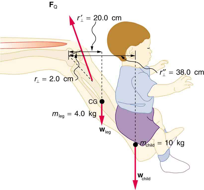 A leg of a person is shown. On the foot, a child is sitting. The weight of the child is ten kilograms acting downward. The center of gravity of the leg is shown at the middle part of the lower leg. The knee is acting as the pivot. The mass of the leg is marked as four kilograms. The distance of the head of the child is thirty eight centimeters from the pivot and the perpendicular distance between the center of gravity of the leg and pivot is twenty centimeters.