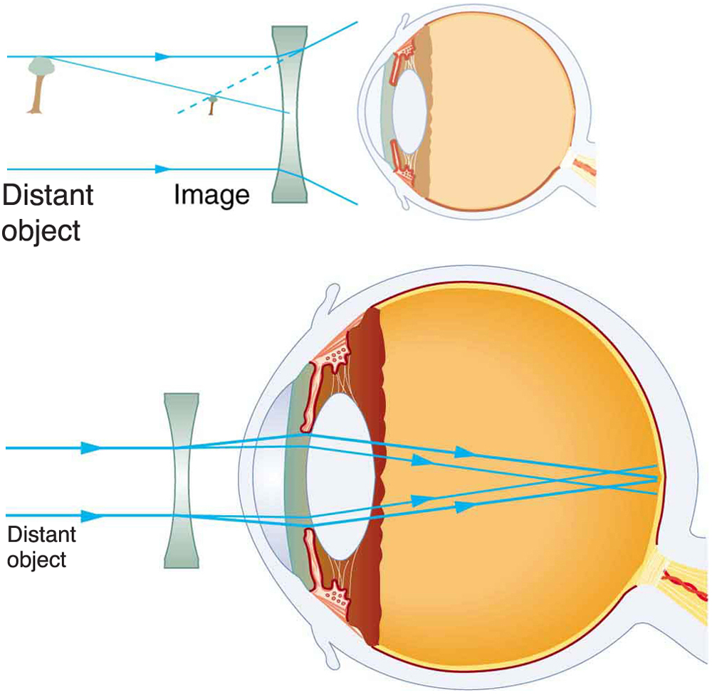 Two illustrations of cross-sectional view of an eye are shown. In the first figure, a diverging spectacle lens is placed in front of the eye structure. A ray diagram for the diverging lens is also shown. Parallel rays from a distant object, taken as tree, are striking the lens and then diverging. A smaller image of the tree is shown in front of the lens. In the second figure, a ray diagram with respect to the diverging lens within the eye structure is shown. Parallel rays from a distant object are striking the diverging lens, entering the lens of the eye, and converging at retina. This explains the correction of nearsightedness using a diverging lens.