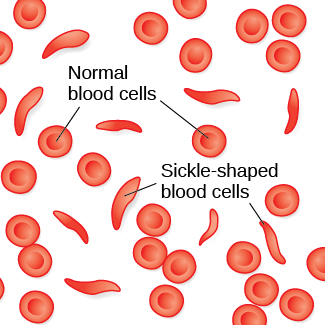 An illustration shows round and sickle-shaped blood cells.