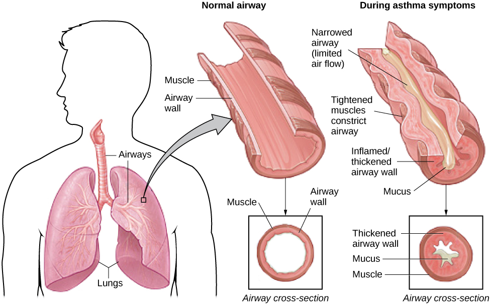 The effect of asthma on airways is illustrated. A silhouette of a person is shown with the lungs and airways labeled. There is an arrow coming from an airway in the lung leading to a magnification of a normal airway. A cross-section of the normal airway shows the muscle and the airway wall, with plenty of room for air to get through. An airway during asthma symptoms is also shown, and the labeled symptoms are narrowed airway (limited air flow), tightened muscles constrict airway, inflamed/thickened airway wall, and mucus. A cross-section of the airway during asthma symptoms shows the thickened airway wall, mucus and muscle. There is much less room for air to get through.